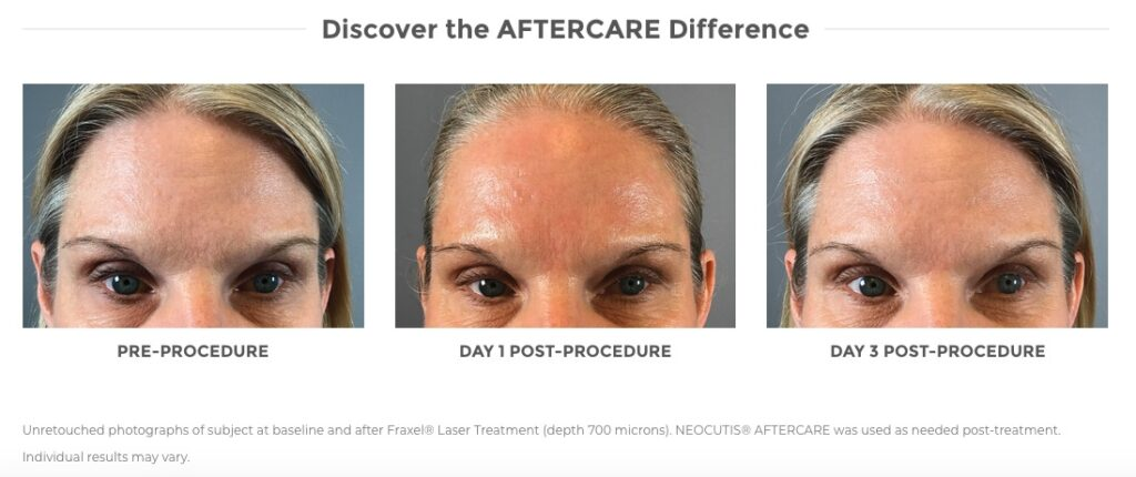 Aftercare Before & After