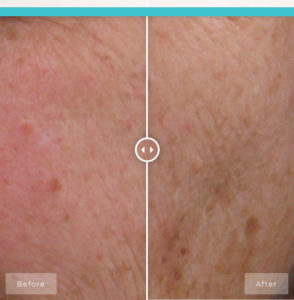 BIO CREAM RICHE BEFORE AND AFTER