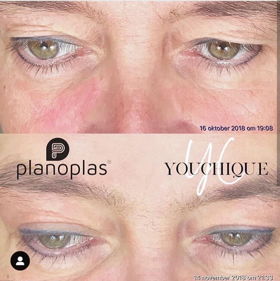 Eye Plasma Pen Treatment